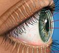 ภาวะต่อมไขมันที่เปลือกตาทำงานผิดปกติ