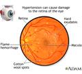 ความดันโลหิตสูงขึ้นจอประสาทตา (Hypertensive retinopathy)