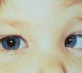 การรักษาตาขี้เกียจ