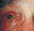 โรคงูสวัดกับดวงตา
