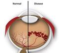 จอประสาทตาผิดปรกติในเด็กคลอดก่อนกำหนด (Retinopathy of prematurity)