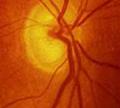 ขั้วประสาทตาขาดเลือด