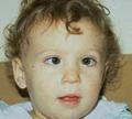 ตาเขในเด็กแรกเกิด