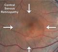 โรคศูนย์กลางจอประสาทตาบวมน้ำ (Central serous chorioretinopathy , CSC)