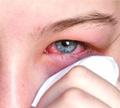 ตาแดงจากเชื้อไวรัส ( Hemorrhagic Conjunctivitis )