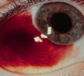 เลือดออกใต้เยื่อบุตา ( Subconjunctival hemorrhage )
