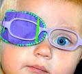 ตาขี้เกียจ ( Lazy eye หรือ Amblyopia )