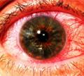 ม่านตาอักเสบ ( Uveitis )